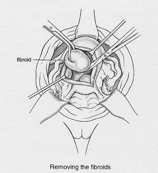 Illustration 2: Removing fibroids from normal uterine muscle