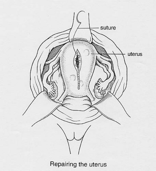 Illustration 3: Repairing the Uterus