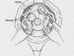Illustration 1: Abdominal Myomectomy Incision