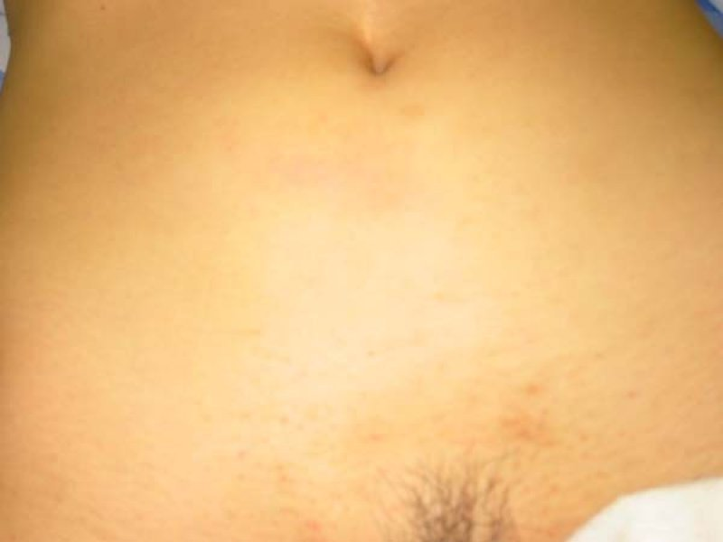 Picture of the abdomen prior to surgery