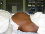 Pre-op view of patient\'s abdomen