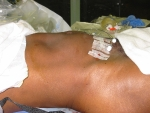 Post-op view of patient\'s abdomen after fibroids were removed