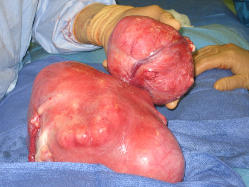 Large fibroid uterus with pedunculated fibroid in back