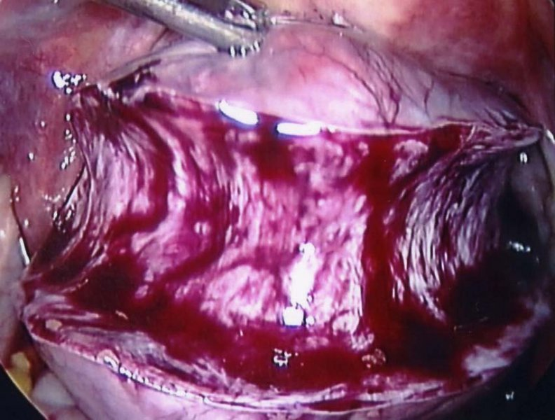 A portion of the fibroid has been removed by the morcellator.