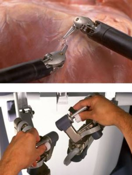 Robotic surgery controls