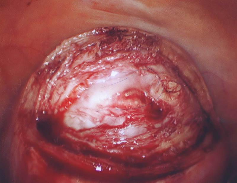 normal uterine muscle cut to reveal pale fibroid below