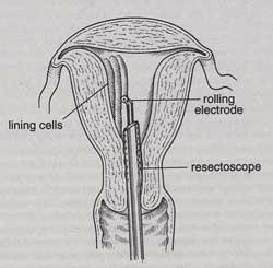 Roller Bar Endometrial Ablation