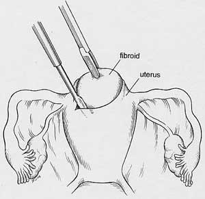 Laparoscopic Myomectomy