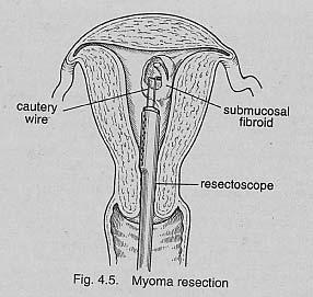 Hysteroscopic Myomectomy