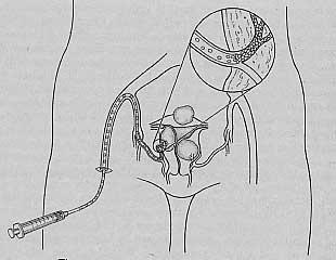 Uterine Fibroid Embolization - placing catheter into uterine artery