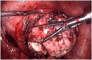 Laparoscopic myomectomy removes fibroids
