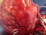 large-fibroid-3