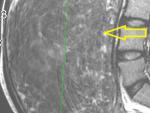 large-fibroid-mri