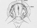 Illustration 3: Repairing the Uterus
