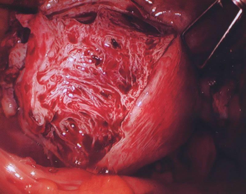 Adenomyosis Morcellation