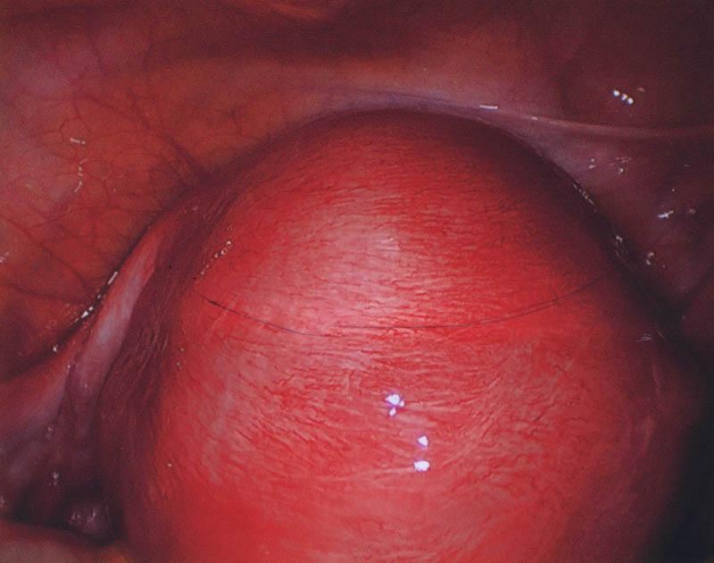 Uterus with Adenomyosis