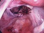 Fibroid attachment behind uterus