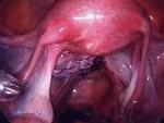 Uterus repaired